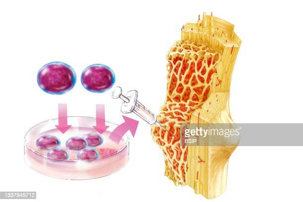 Stem cell therapy. Graft of hematopoietic stem cell . The stem cells administered by transfusion migrate and colonize the bone marrow.