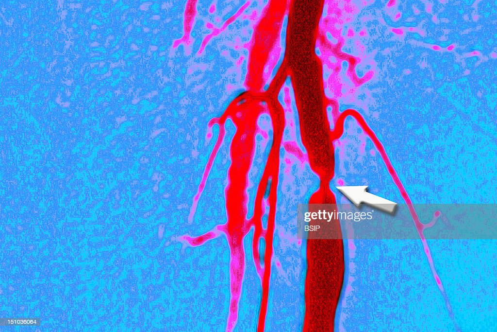 Stenosis Femoral Artery Angio Pictures Getty Images