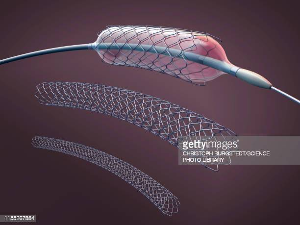 stents and balloon catheters, illustration - myocardium stock photos and pictures