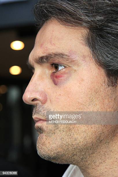Stephane Delajoux the French surgeon at the center of allegations of performing a botched operation on rock legend Johnny Hallyday leaves the Hotel...