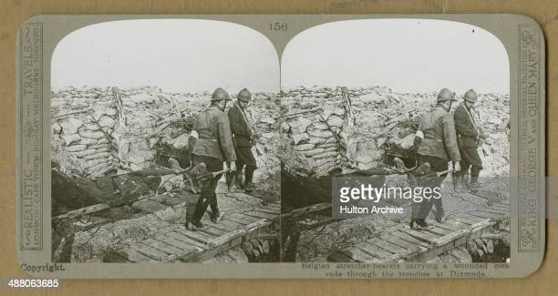 A stereoscopic image of Belgian stretcher bearers carrying a wounded man through trenches at Diksmuide Flanders Belgium during the Battle of the Yser...