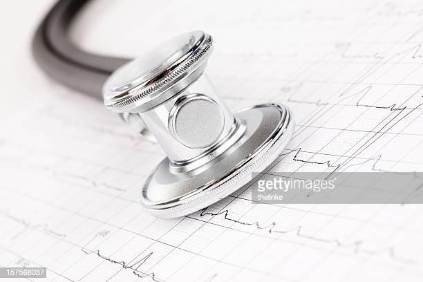 Stethoskop auf cardiogram Computerausdruck