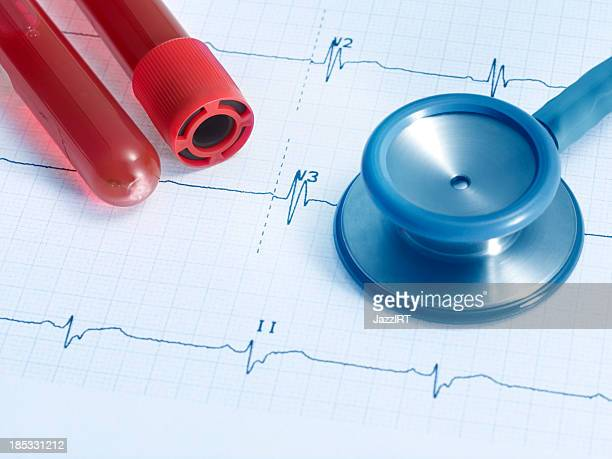 stethoscope on real ecg and plastic test tube with blood - heart internal organ stock pictures, royalty-free photos & images