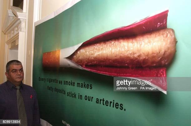 Steve Plumb from Peterborough stands next to a poster issued by the British Heart Foundation warning of the dangers that smoking cigarettes can have...
