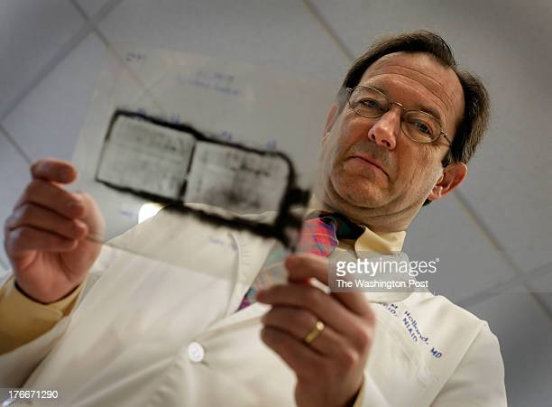 Steven M HollandMDChief of the Laboratory of Clinical Infectious Disease looking at a patient's film of western blot at the National Institutes of...