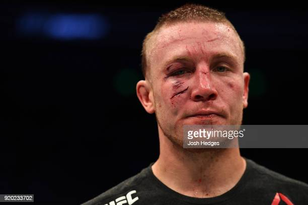 Steven Peterson reacts after his decision loss to Brandon Davis in their featherweight bout during the UFC Fight Night event at Frank Erwin Center on...