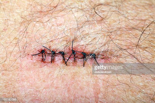 stiched incision from a basal cell carcinoma removal - medical stitches stock photos and pictures