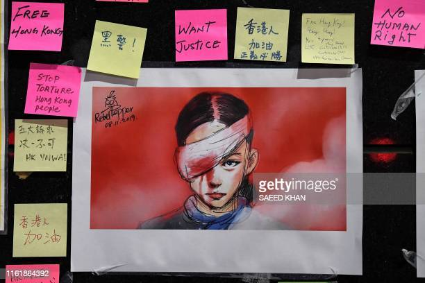 Stickynotes carrying messages of support for Hong Kong's prodemocracy protesters and an image of a woman who suffered an eye injury which...