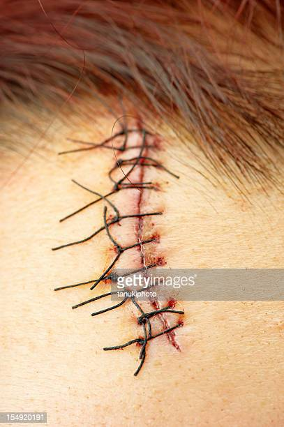 stitch on wound - suture stock photos and pictures