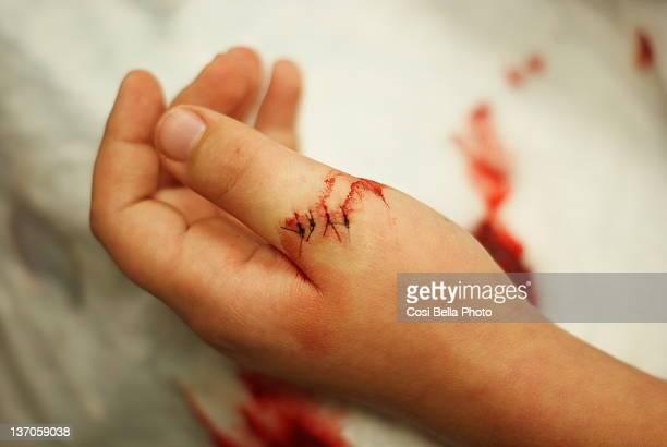 stitched bloody thumb - herida puntos fotografías e imágenes de stock