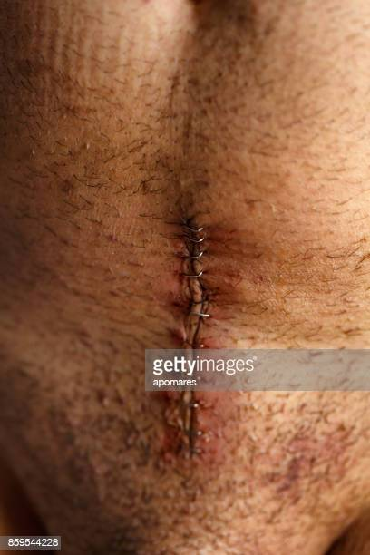 cousu vers le haut de la plaie avec des agrafes en chirurgie ouverte de la prostatectomie radicale - organe de reproduction masculin photos et images de collection