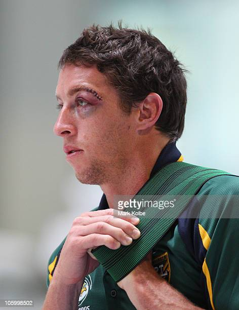 Stitches are seen above the eye of Kurt Gidley as he stretches during an Australian Kangaroos Four Nations recovery session at Sydney Olympic Park...