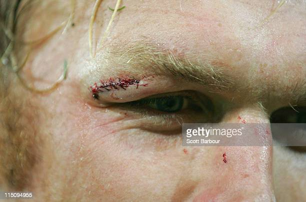 Stitches are seen near the eye of Schalk Burger of the Stormers during the round 16 Super Rugby match between the Rebels and the Stormers at AAMI...