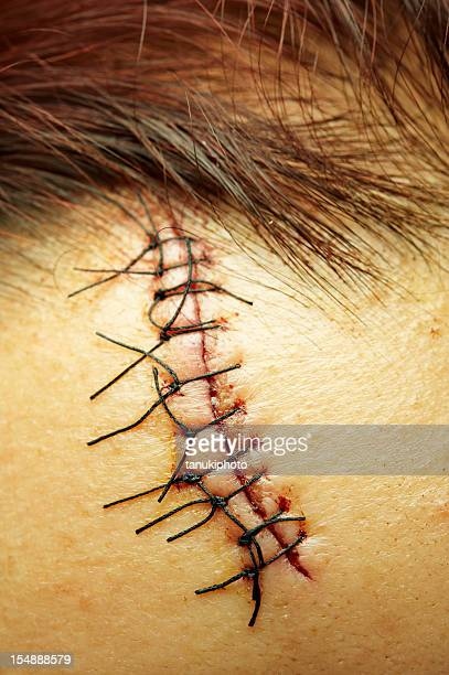 stitches close up - suture stock photos and pictures