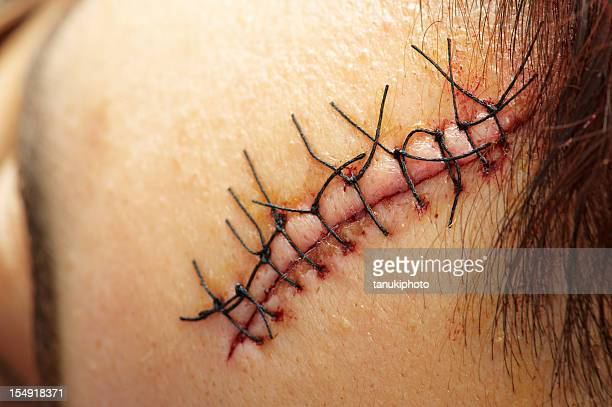 stitches close up - medical stitches stock photos and pictures