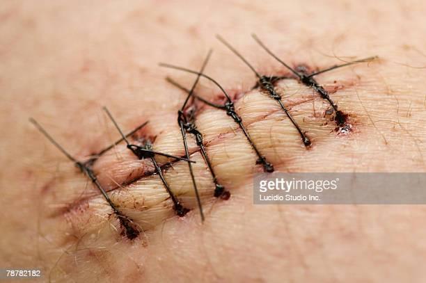stitches in skin - herida puntos fotografías e imágenes de stock