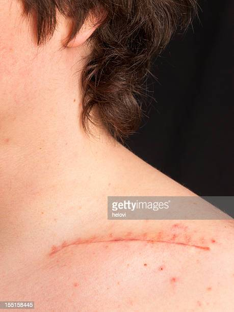stitches on collar bone - medical stitches stock photos and pictures