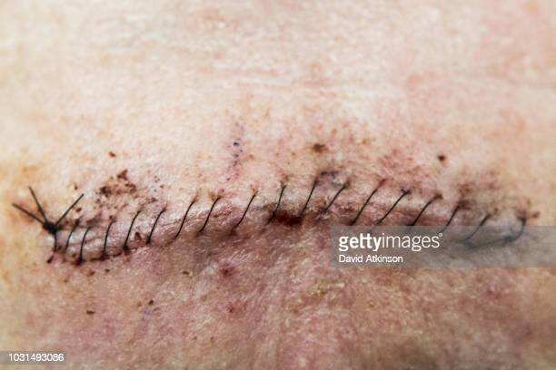 stitches on forehead after mohs surgery for skin cancer. - suture stock photos and pictures