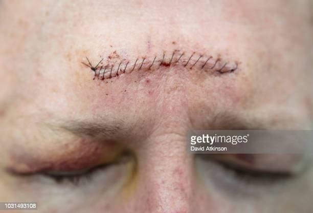 stitches on forehead after mohs surgery for skin cancer. - medical stitches stock photos and pictures