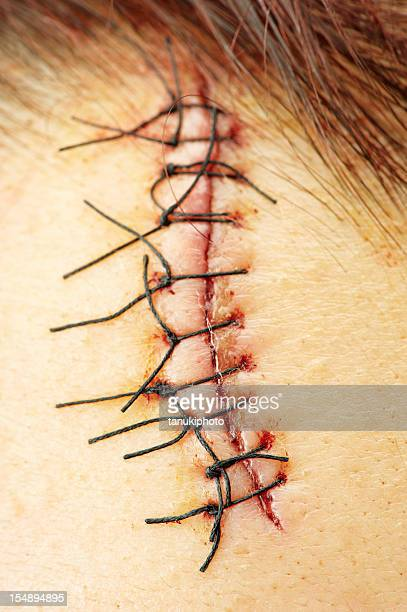 stitches - suture stock photos and pictures