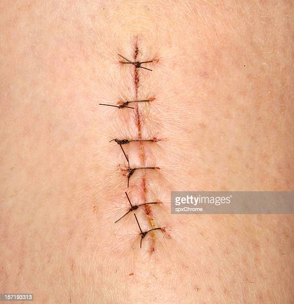 60 Top Medical Stitches Pictures, Photos, & Images - Getty