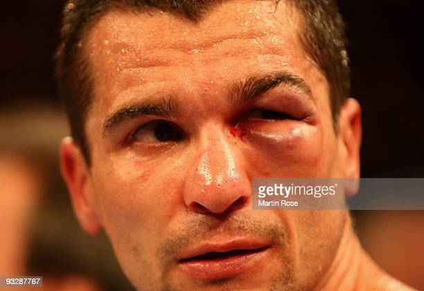 Stjepan Bozic of Croatia seen with an eye injury after the WBA super middleweight world championship fight during the Universum Champions night...