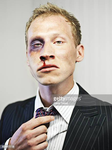 Stock market broker after a beating