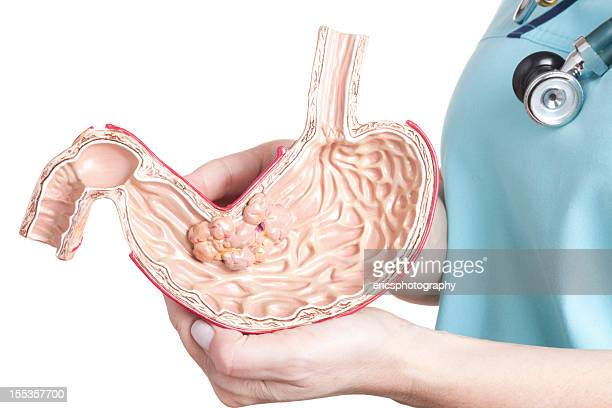 stomach cancer - human intestine stock photos and pictures