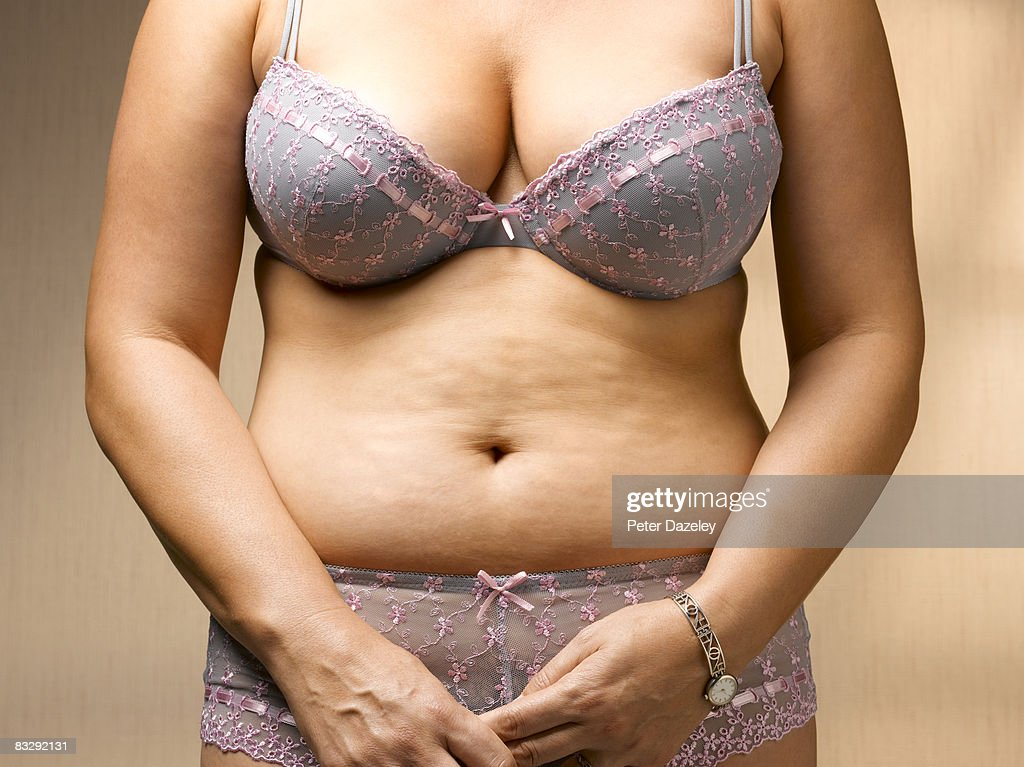 Stomach with cellulite : Stock Photo