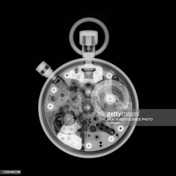 stopwatch, x-ray - x ray image stock pictures, royalty-free photos & images