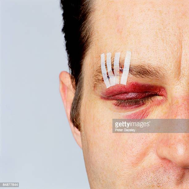 street crime victim eyes closed with stitches - medical stitches stock photos and pictures
