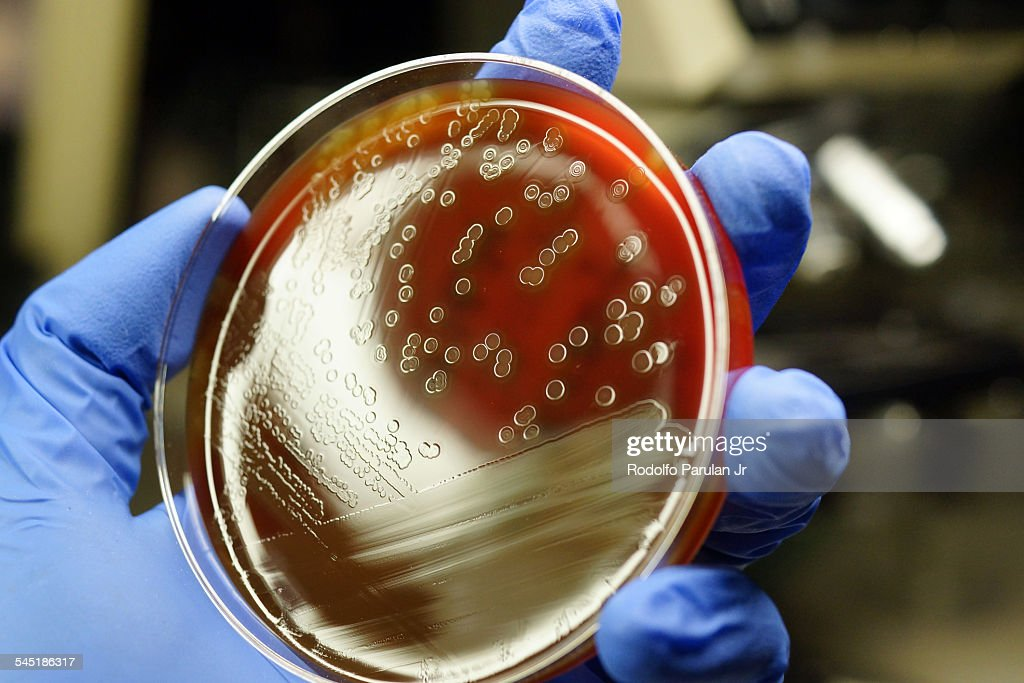 Streptococcus pneumoniae colonies : Stock Photo