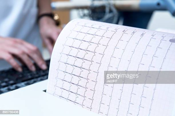 ecg, stress test graph - stress test stock pictures, royalty-free photos & images