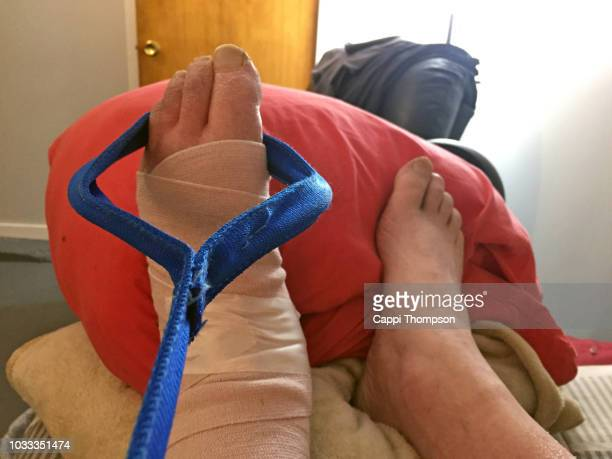stretching swollen foot with drop foot from nerve damage - swollen ankles stock pictures, royalty-free photos & images