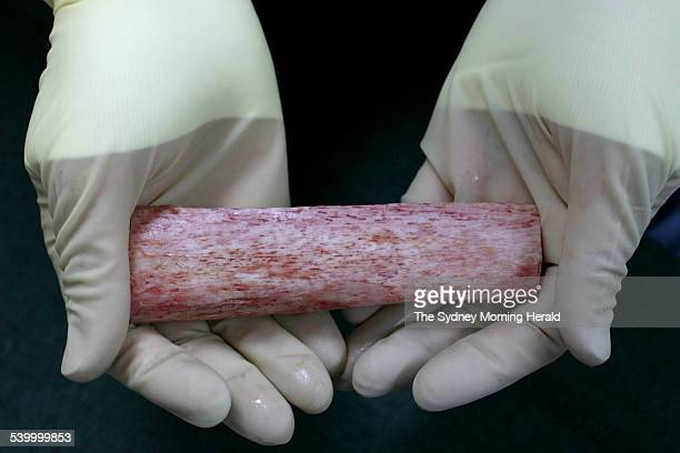 A stripped down bone at the Australian Biotechnologies plant in their Frenchs Forest where human tissues are recycled for transplant 29 June 2006 SMH...
