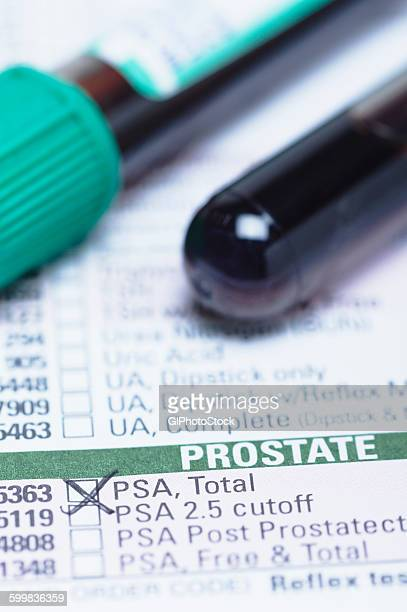 studio shot of blood sample tube (containing synthetic blood) on a haematology requisition form listing prostate-specific antigen (psa) test. - psa stock photos and pictures