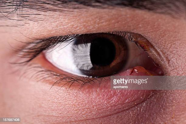 stye - eye infection - lid stock photos and pictures