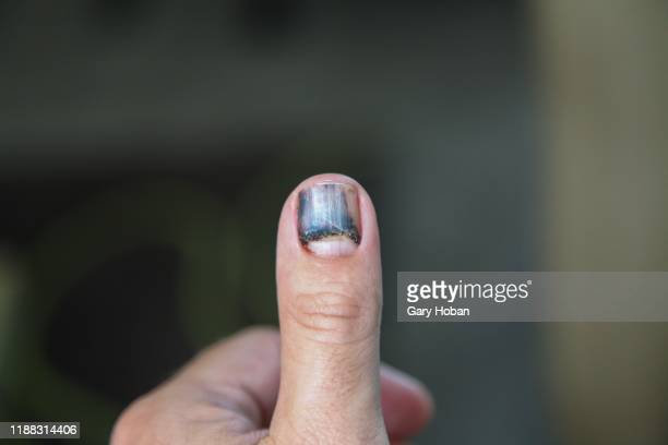 sub ungual hematoma - thumb stock pictures, royalty-free photos & images
