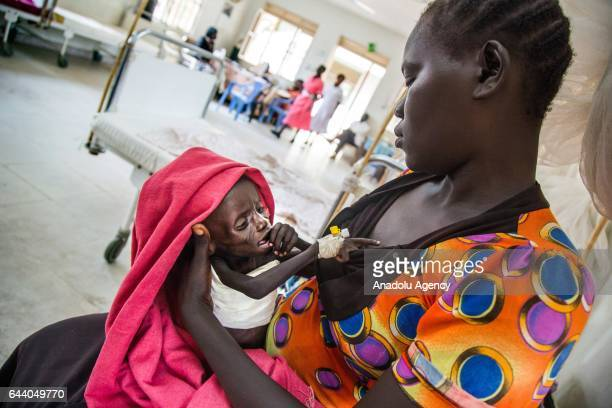 A Sudanese kid Emmanuel Laki receives treatment at the UN Protection of Civilians site in Juba South Sudan on February 17 2017 Due to the...