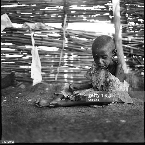 Sudanese refugee child Jamiya Siamarpap with malnutrition sits in her families hut in the Djabal Refugee Camp April 2007 in Goz Beida Chad tensions...