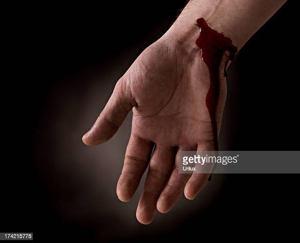 suicide attempt - bleeding wrist of human hand - wounded stock photos and pictures