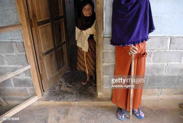 Sulami a woman from Sragen suffers from a rare disease that turns her into a rigid gradually within 25 years in Selorejo village Sragen Central Java...