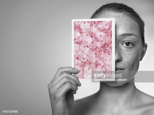 sun damage - histology stock pictures, royalty-free photos & images