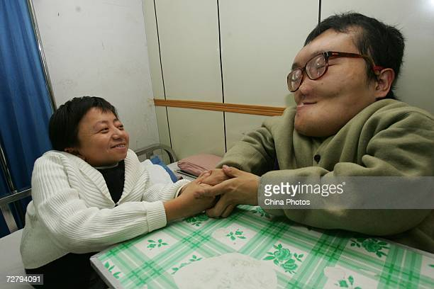 Sun Xiangming reported in China as the 'Huge Head Businessman' shakes hands with his pen pal volunteer Yu Haibo at the First Hospital of Jilin...