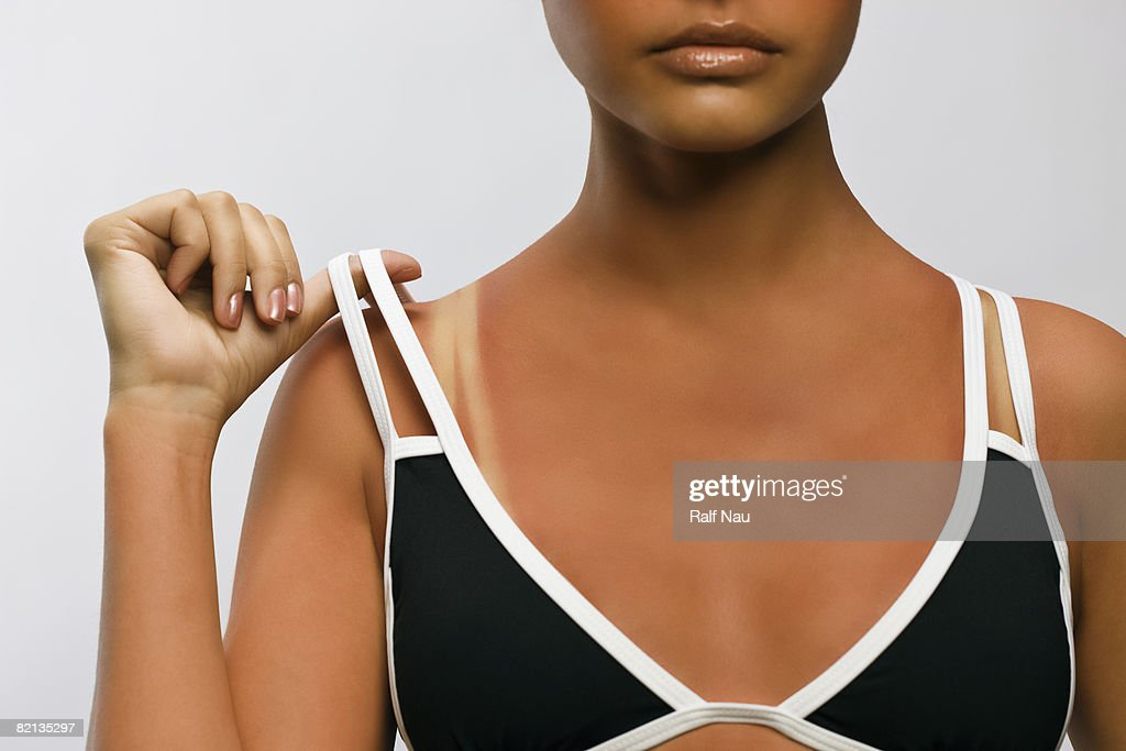 Sunburn Beauty Portrait : Stock Photo