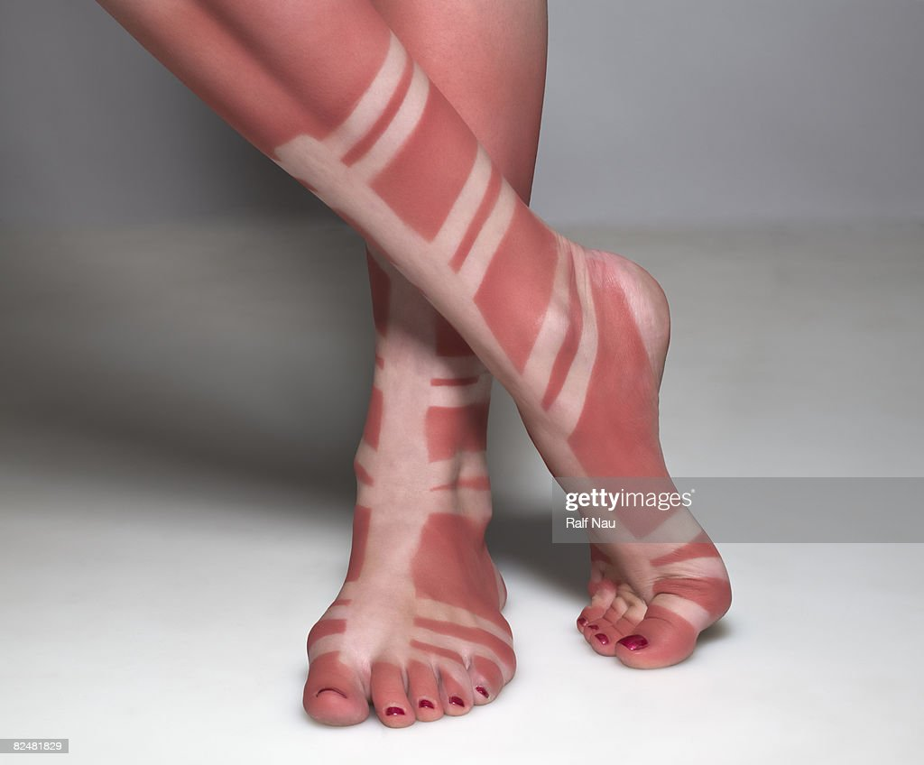 Sunburn of person wearing gladiator sandals : Stock Photo