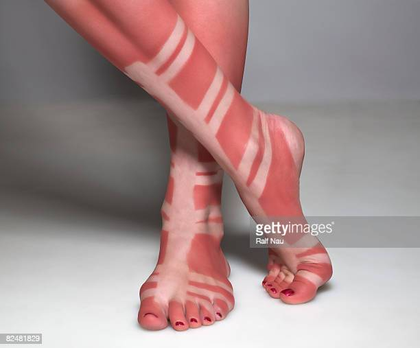 sunburn of person wearing gladiator sandals - quemado por el sol fotografías e imágenes de stock