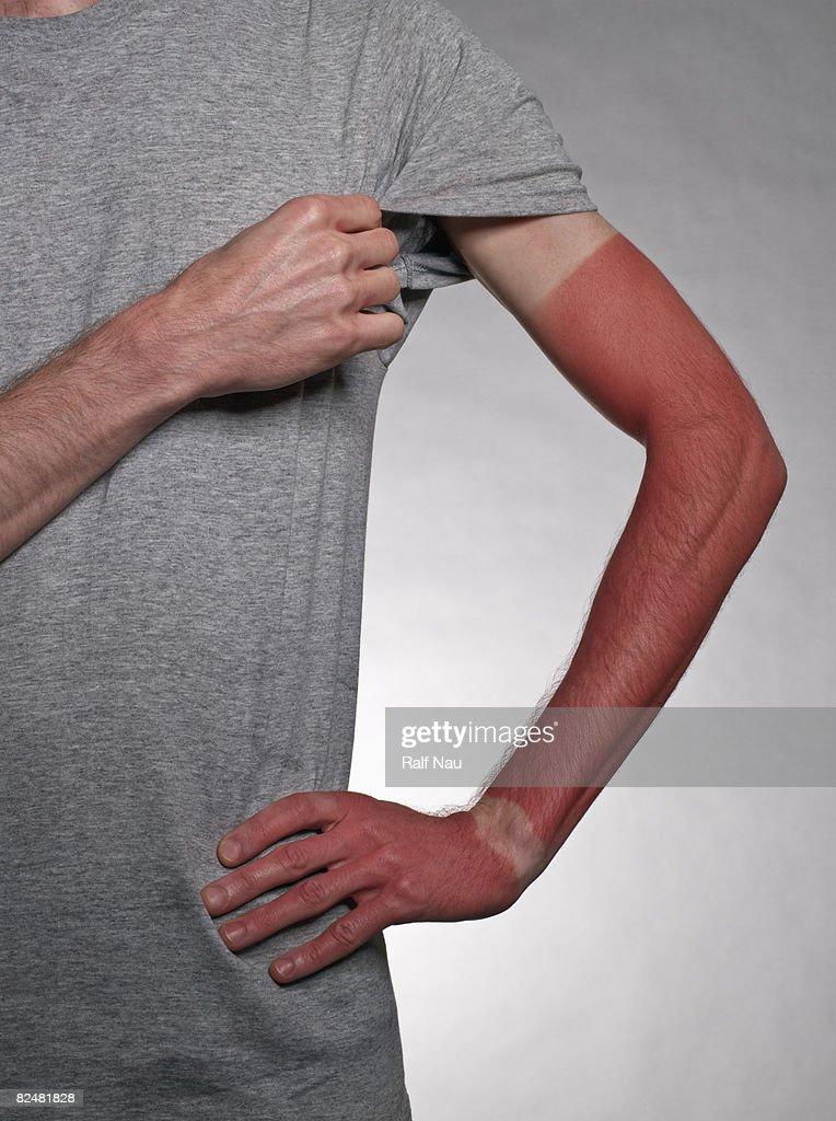 Sunburn on arm : Stock Photo