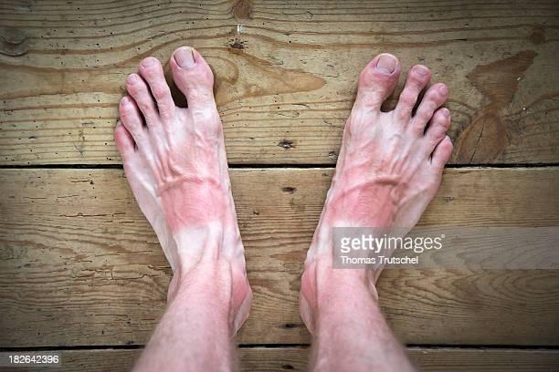 Sunburn on the feet