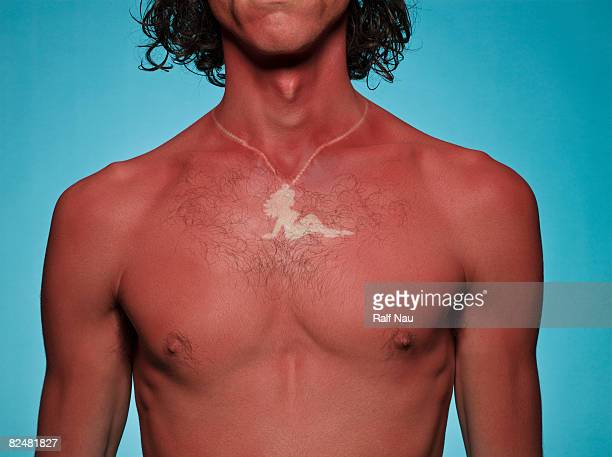 Sunburned guy with outline of necklace